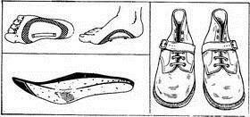 Как исправить косолапие у ребенка