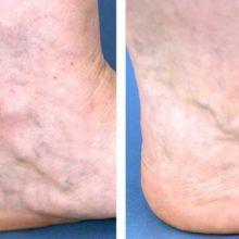 Варикоз на ступнях: фото, симптомы, лечение