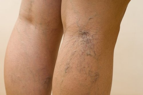 Сосудистые звездочки на ногах: причины, фото, лечение современными и народными методами, отзывы