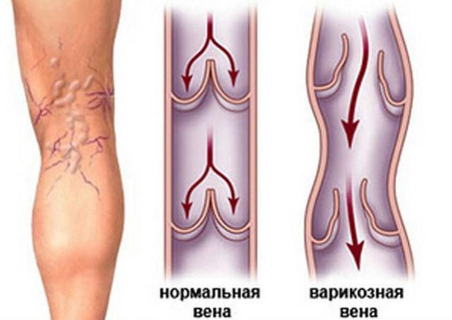 Диета при варикозе вен на ногах - полезные и запрещенные продукты, принципы правильного питания