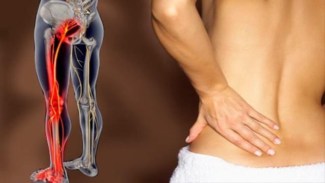Боль в тазобедренном суставе отдающая в ногу и ягодицу - причины и лечение