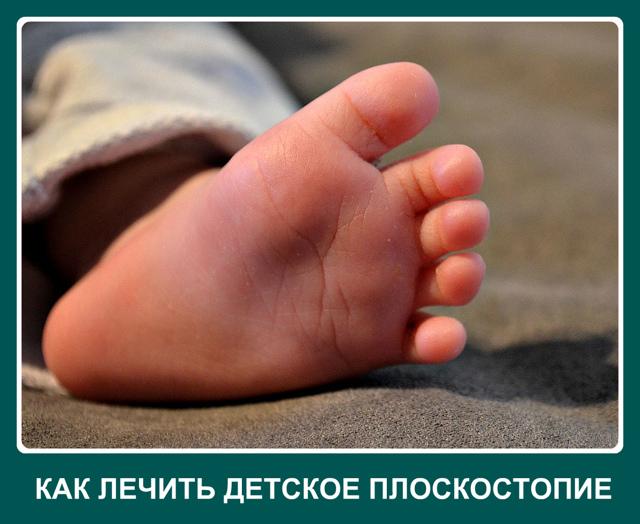Плоскостопие у детей - лечение в домашних условиях