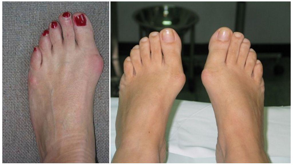 Артроз большого пальца ноги: лечение, симптомы, фото, отзывы