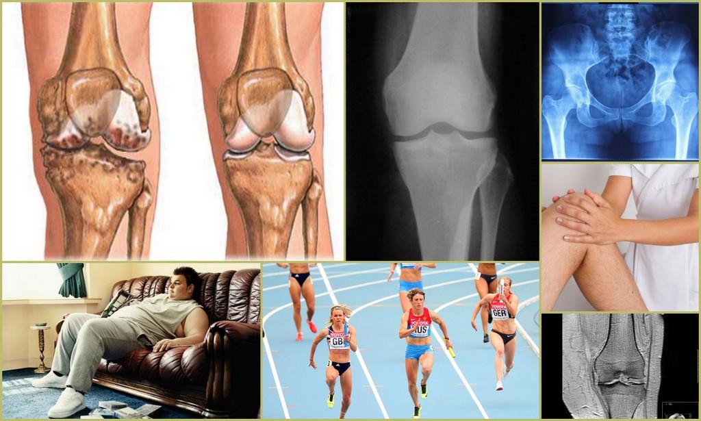 Остеосклероз: причины, симптомы, лечение