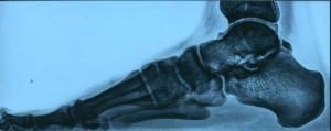 Плоскостопие с артрозом: причины, симптомы, лечение