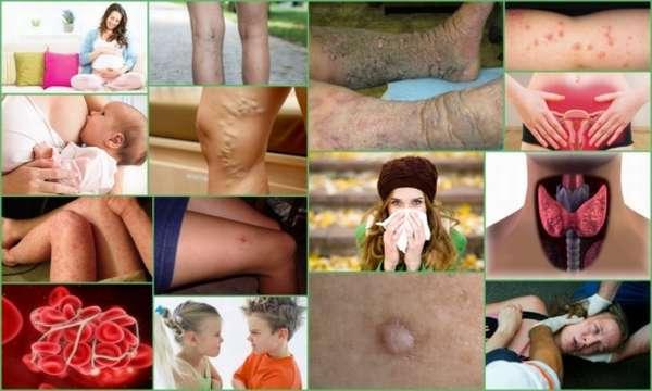 Озонотерапия от целлюлита: описание процедуры, отзывы, фото до и после