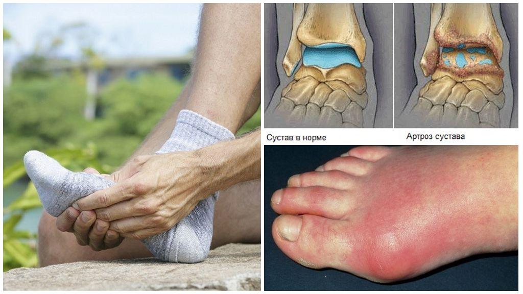 Профилактика артроза коленного, тазобедренного, голеностопного, суставов стопы