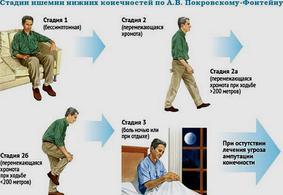 Стенозирующий атеросклероз артерий нижних конечностей: причины, признаки, диагностика, лечение