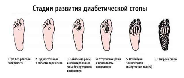 Прыщи при диабете сахарном: на теле, спине ногах - лечение, фото