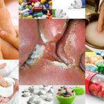 Грибок между пальцами ног - лечение в домашних условиях