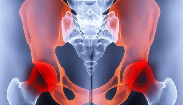 При беременности болят тазобедренные суставы: причины и лечение