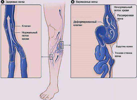 Пиявки при варикозе вен нижних конечностей - польза и вред гирудотерапии, схема постановки, отзывы