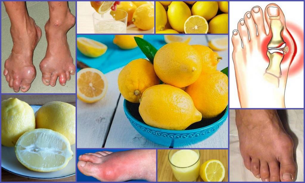 Лимон при подагре - польза или вред, рецепты для лечения