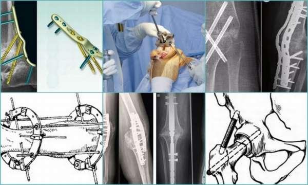 Артродез суставов: виды, последствия, реабилитация, отзывы пациентов