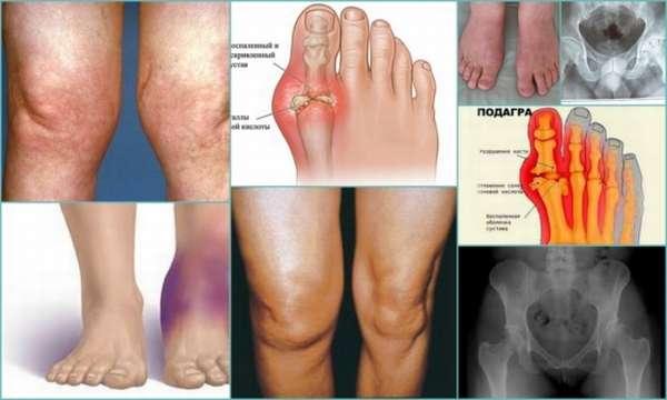 Болезни суставов: как называются, классификация, причины, симптомы, профилактика