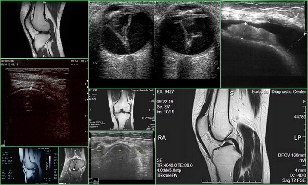 Рентген, МРТ или УЗИ коленного сустава - что лучше