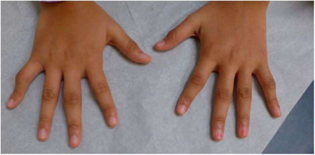 Реактивный артрит у детей: причины, симптомы, лечение, последствия