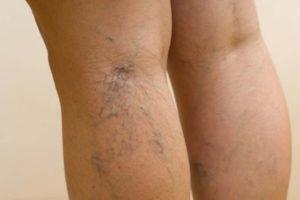 Судороги в ногах при беременности ночью: причины, лечение, профилактика