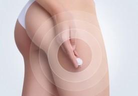 Кремы от целлюлита для беременных: можно ли использовать, рецепт домашнего крема