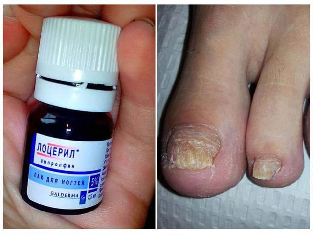 Какой лак от грибка ногтей на ногах лучше: список, цены, отзывы