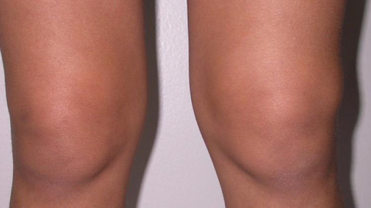 Жидкость в коленном суставе: причины и лечение, фото, симптомы, диагностика