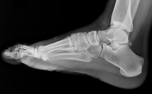 Рентген голеностопного сустава: как делают, фото снимков, цена