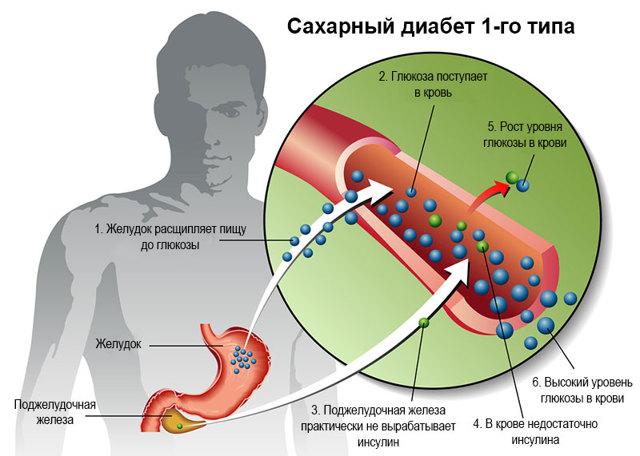 Инсулинозависимый диабет сахарный 2 и 1 типа: МКБ-10, инвалидность, лечение, симптомы, продолжительность жизни. диета, препараты