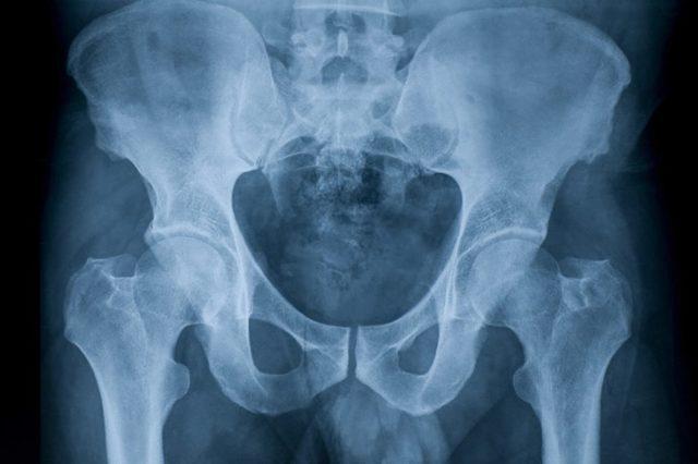 Рентген тазобедренного сустава: как делают, фото снимков, норма, цена