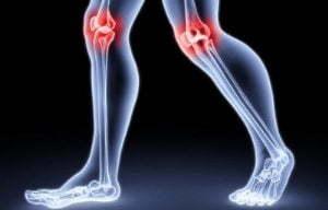 Лазерная терапия суставов - польза и вред, отзывы