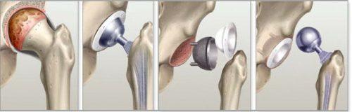 Боль в тазобедренном суставе лежа на боку ночью - причины и лечение