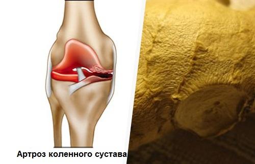 Как и чем снять боль и воспаление в коленях при артрозе