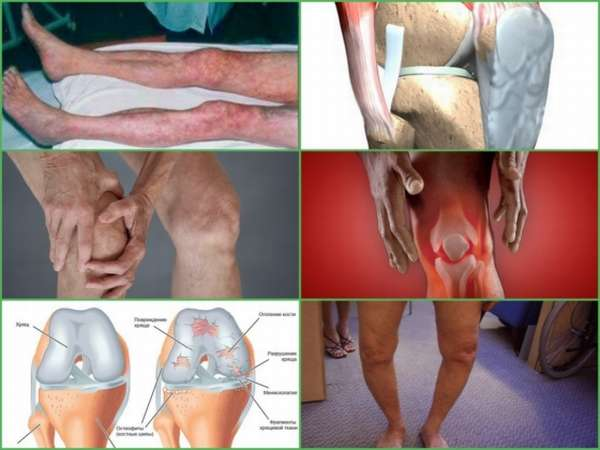 Осложнения после артроскопии мениска коленного сустава: болит и распухло колено, контрактура, выпот, синовит
