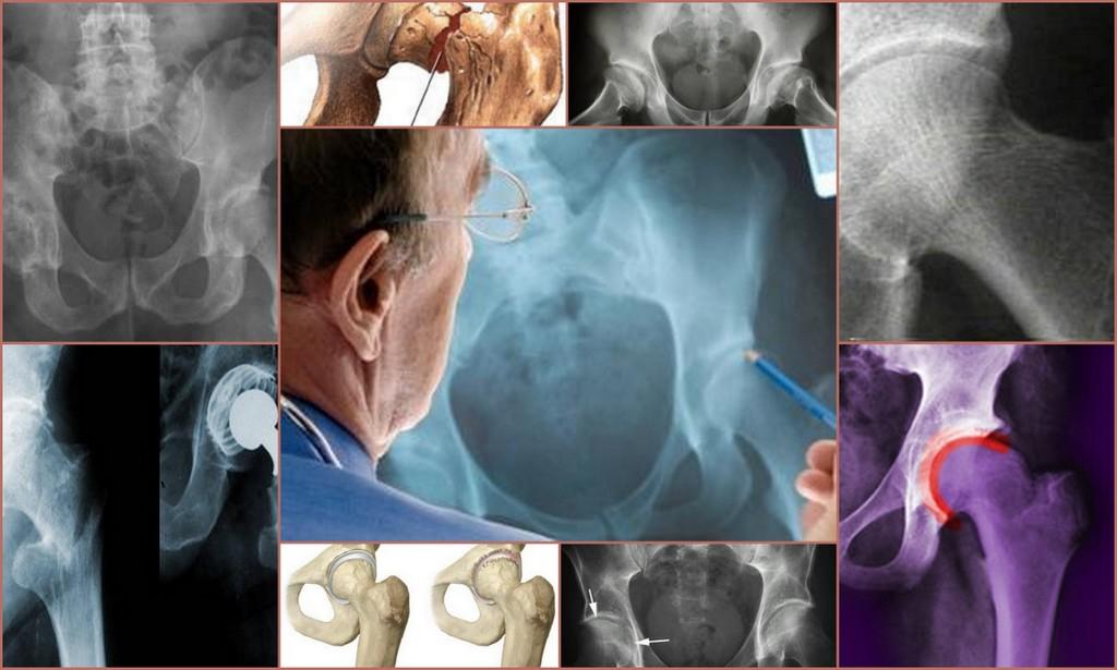 Остеопороз тазобедренного сустава: симптомы и лечение, причины, диагностика