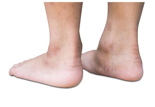 Причины плоскостопия, факторы способствующие развитию заболевания
