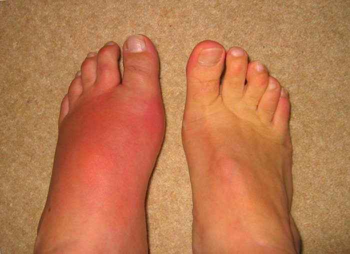 Подагрический артрит: симптомы, лечение, диагностика, фото