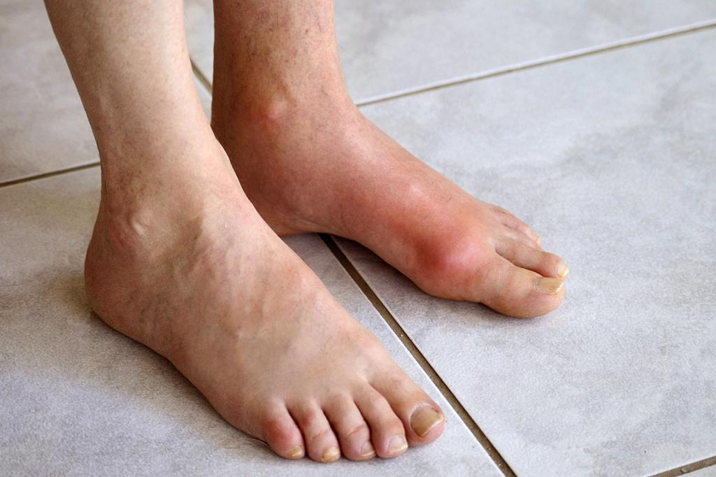 Чем и как лечить подагру на большом пальце ноги