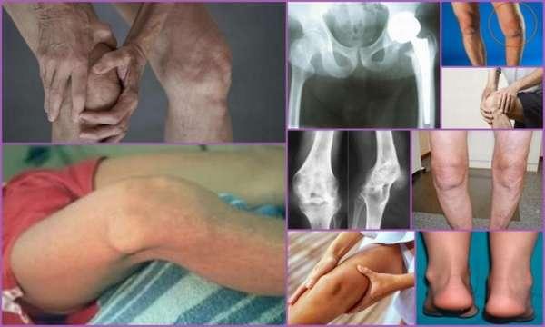 Анкилоз: причины, симптомы, лечение (консервативное и операция)
