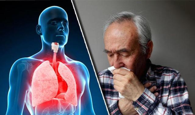 Хронический бронхит: симптомы и лечение у взрослых