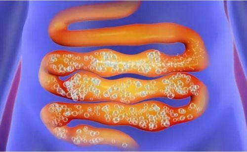 Вздутие желудка: причины и лечение, возможные заболевания