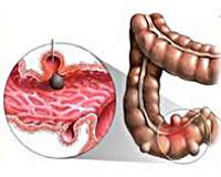 Дивертикулы кишечника - что это такое, симптомы и лечение