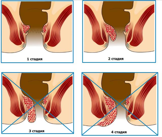 Геморрой во время беременности как лечить: препараты и народные методы