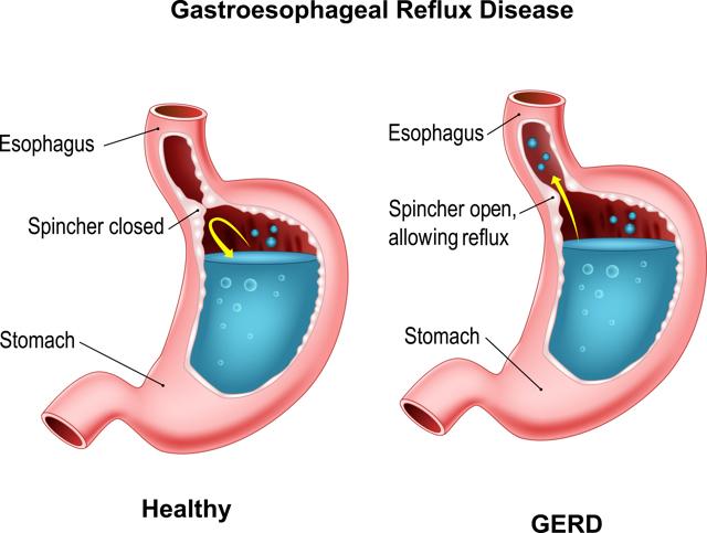 Рефлюксная болезнь желудка: симптомы, лечение, а также диагностика и лечение