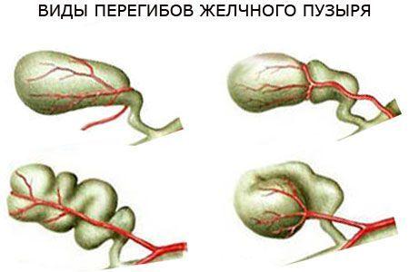 Перегиб желчного пузыря в области шейки: симптомы и лечение