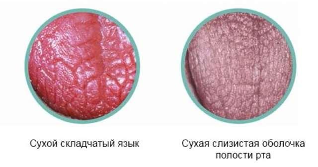 Дисгевзия: что это, причины, сиптомы, лечение и профилактика
