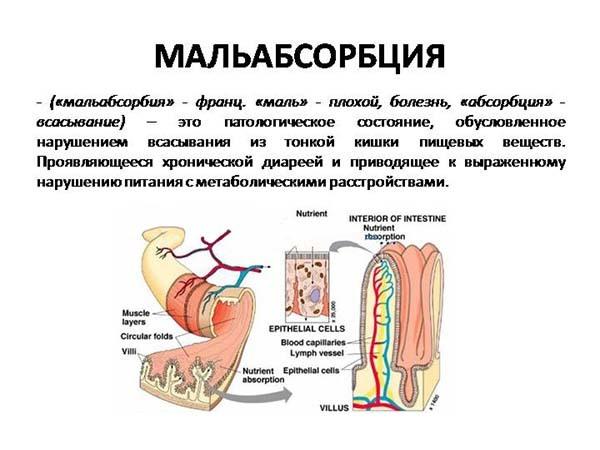Болит левая подвздошная область у мужчин - причины и лечение