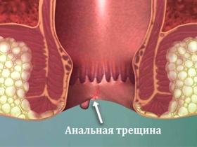 Трещины заднего прохода: причины и лечение, симптомы, эффективные средства