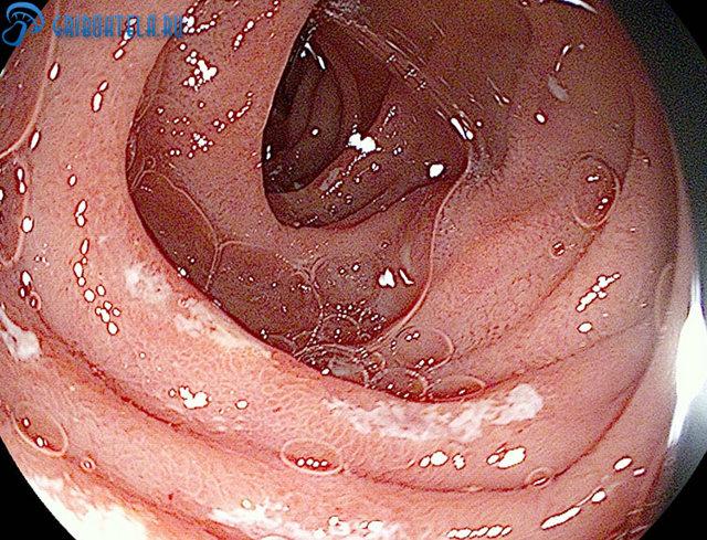Молочница в кишечнике: симптомы, причины возникновения и лечение