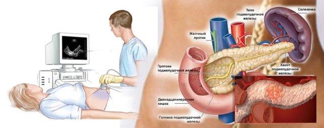 Подготовка к абдоминальному УЗИ - питание, необходимые процедуры