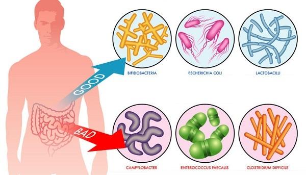 Признаки кишечной инфекции у взрослых, симптомы, как и чем лечить