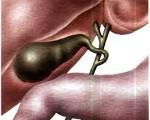 Признаки холецистита у женщин: как распознать хронический и острое воспаление?
